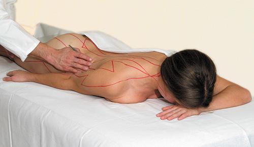 APM-Behandlung